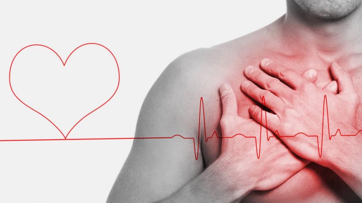 Paro cardíaco, definición y Síntomas